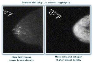 100222_breast-density