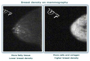 100222_breast-density